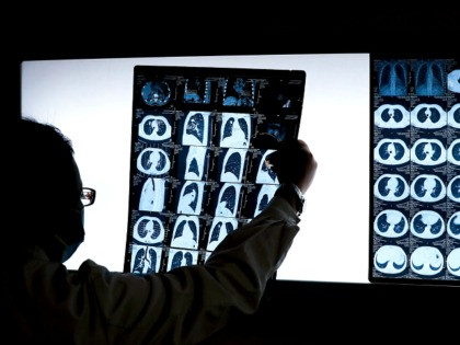 In this Thursday, Dec. 8, 2016 photo, Chinese doctor Peng Limei looks at a CT scan of a lung cancer patient at the Jingdong Zhongmei private hospital in Yanjiao, China's Hebei Province. As China considers a nationwide ban on smoking indoors, the fight is well underway in Beijing, which banned …