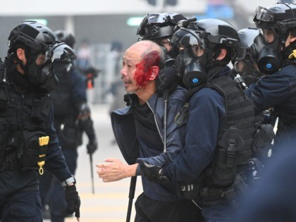 TOPSHOT - Police detain an injured man after police dispersed a crowd gathered for the 'universal siege on communists' rally at Chater Garden in Hong Kong on January 19, 2020. - Violence returned to Hong Kong's streets on January 19 with police firing tear gas to disperse crowds after a …