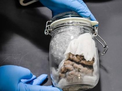 Human Brain Seized at Michigan International Mail Port