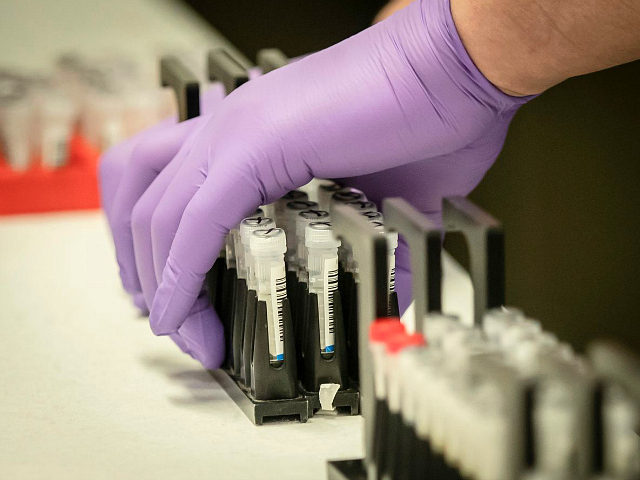Samples are tested for respiratory viruses, which procedure will be used to test the novel coronavirus COVID-19, during a visit by Britain's Chancellor of the Exchequer Rishi Sunak to the pathology labs at Leeds General Infirmary to highlight the record infrastructure spend after yesterday's budget, in Leeds, Yorkshire on March …