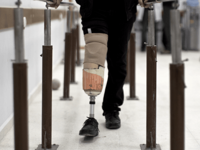 Palestinian Osama al-Batsh, 31, wounded during the 50 days of conflict between Israel and Hamas last summer, practices walking with his prosthetic leg at Gaza's Artificial Limbs and Polio Centre (ALPC) in Gaza City on November 19, 2014. The ALPC was established in 1974 and operates with the technical support …