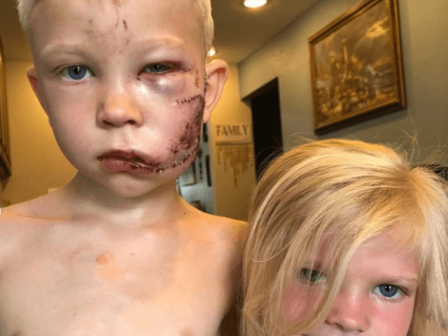Nikki Walker shared on Instagram that her nephew Bridger saw a dog approach his sister and deliberately stood in front of her. The dog attacked Bridger instead, biting the side of the boy's face and head. (@nicolenoelwalker/Instagram)
