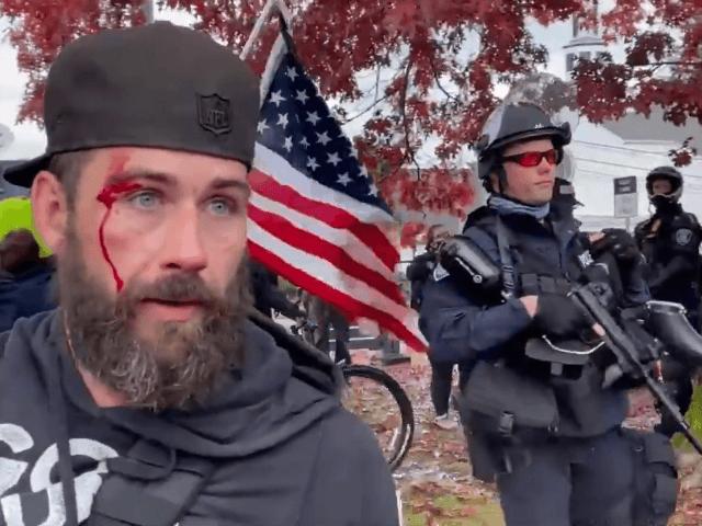 Antifa Attack