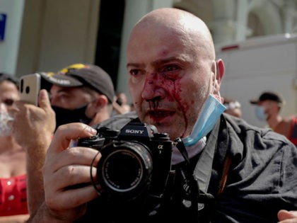 """AP photographer, Spanish Ramon Espinosa, is seen with injuries in his face while covering a demonstration against Cuban President Miguel Diaz-Canel in Havana, on July 11, 2021. - Thousands of Cubans took part in rare protests Sunday against the communist government, marching through a town chanting """"Down with the dictatorship"""" …"""