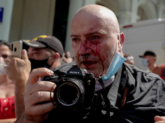 """AP photographer, Spanish Ramon Espinosa, is seen with injuries in his face while covering a demonstration against Cuban President Miguel Diaz-Canel in Havana, on July 11, 2021. - Thousands of Cubans took part in rare protests Sunday against the communist government, marching through a town chanting """"Down with the dictatorship"""" and """"We want liberty."""" (Photo by Adalberto ROQUE / AFP) (Photo by ADALBERTO ROQUE/AFP via Getty Images)"""