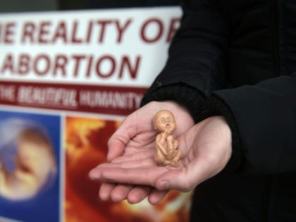 BELFAST, NORTHERN IRELAND - APRIL 07: A Pro Life campaigner displays a plastic doll representing a 12 week old foetus as she stands outside the Marie Stopes Clinic on April 7, 2016 in Belfast, Northern Ireland. The anit abortion supporters have protested outside the clinic where women can go for …
