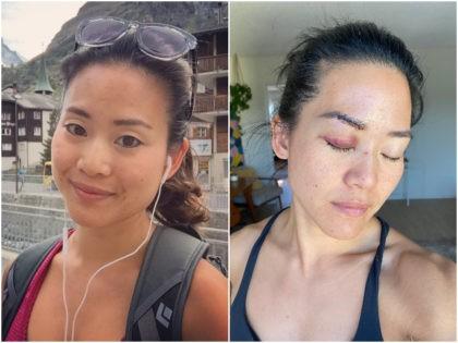 'Survivor: Fiji' Star Michelle Yi Stabbed and Beaten By Homeless Woman in Democrat Run Santa Monica, California