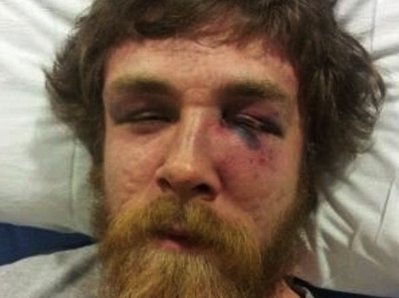 Wisconsin Senator's Son Beaten to Pulp by Anti-Romney Thugs