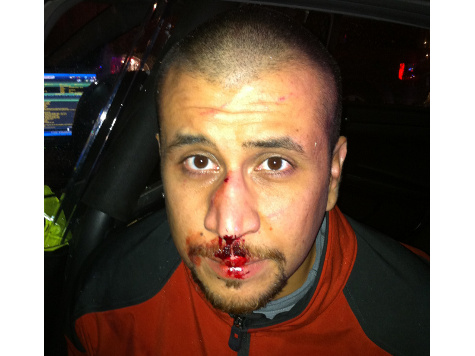 Photo of George Zimmerman Shows Bloody Nose on Night of Trayvon Martin Shooting