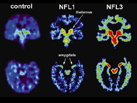 UCLA Study Finds Brain Damage in Five Living Retired NFL Players