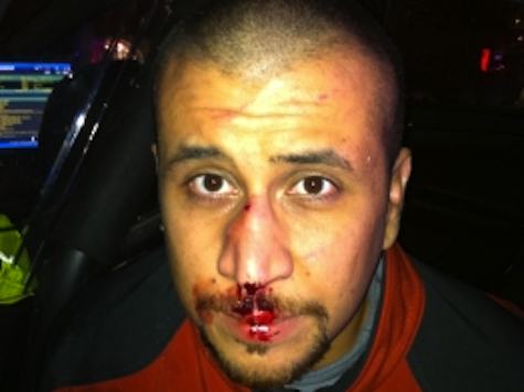 Prosecution Witness: Zimmerman's Nose Broken, Injuries Consistent with Head Slammed on Concrete