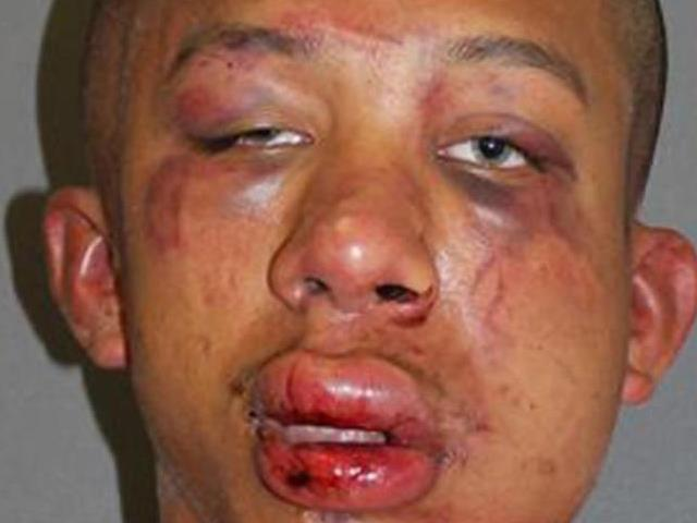 No Charges for Florida Father Who Beat Man Molesting His Son