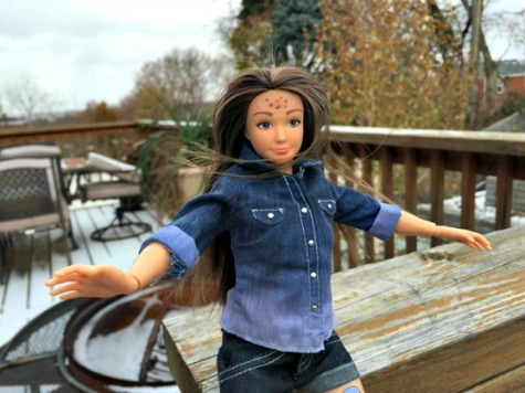 'Normal Barbie' Arrives With Zits, Cellulite And Stretch Marks