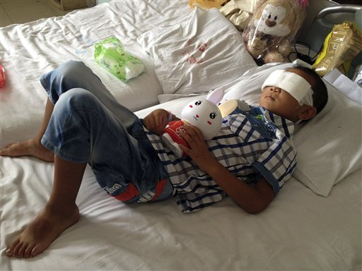 China Police: Aunt Likely Gouged Out Boy's Eyes