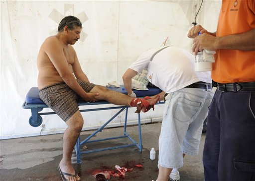 Argentina: 70 Injured in Carnivorous Fish Attack