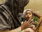 World View: Taliban Murders of Pakistan Health Workers Brings Measles Surge