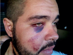 Venezuela Government Tortures, Disfigures Protesters' Faces
