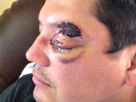 Passenger Attacked by Hammer-Wielding Uber Driver Could Lose Eye