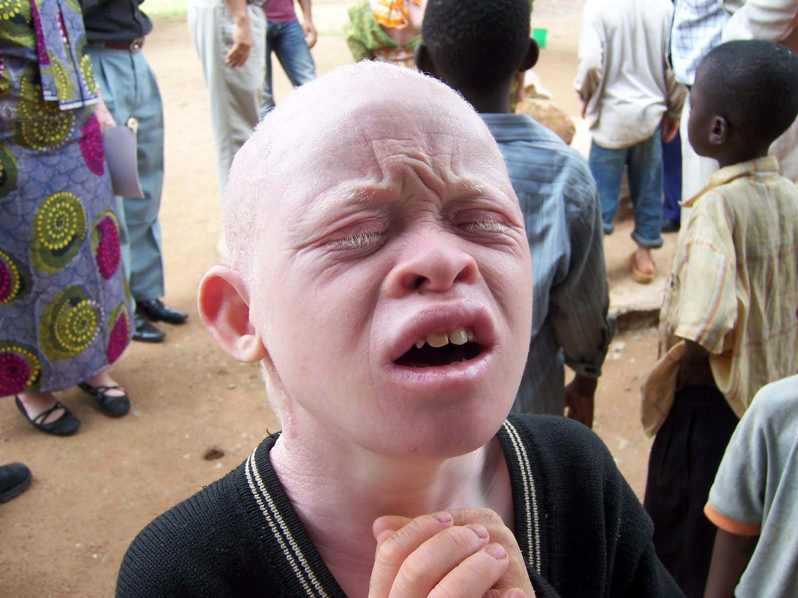 'Albino Hunters' Dismember Tanzanians for 'Magical' Powers