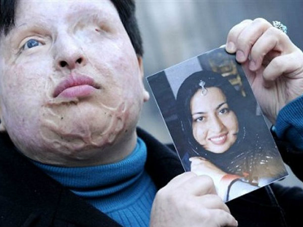 Shocking Rise in Acid Attacks in Iran Against Women Deemed 'Badly Veiled'