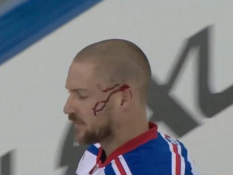 Rangers Klein Reattaches Ear, Scores Winning Goal