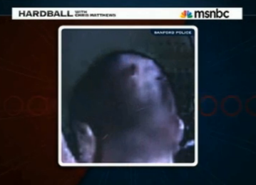 MSNBC Concedes Injury To Back Of Zimmerman's Head Apparent On Police VIdeo