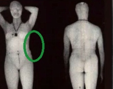 Citizen Journalist Exposes TSA Body Scans As Useless