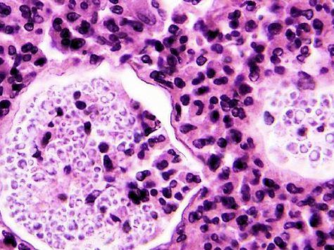 Seven Dead as Meningitis Outbreak Reaches Nine States