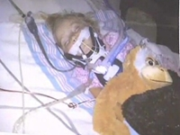 Family: Toddler on Life Support After Spanking from Babysitter