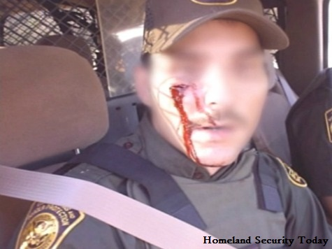 Border Patrol Agents Speak Out Against Being Assaulted by Aliens