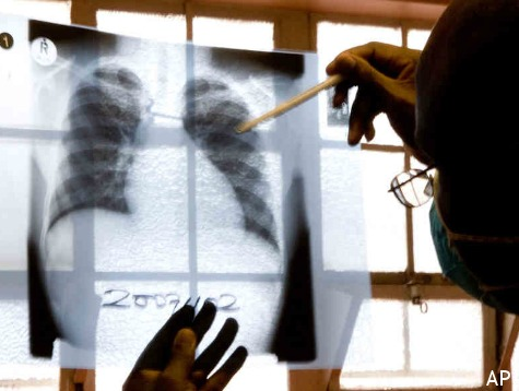 More Than 700 Infants Exposed to TB at El Paso Hospital