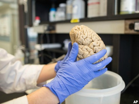 100 Human Brains Stolen from UT