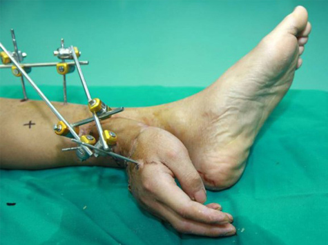 Doctors Save Severed Hand By Sewing to Man's Ankle