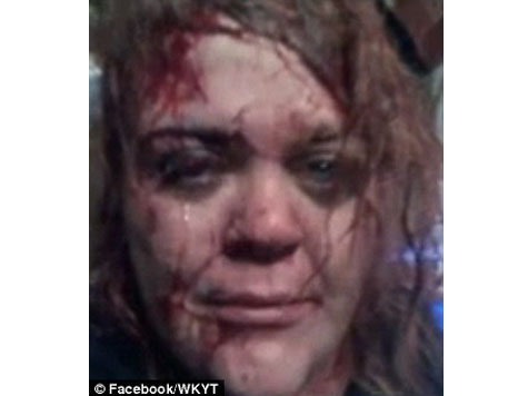 Badly Beaten Woman Posts 'Life Saving' Selfie on Facebook