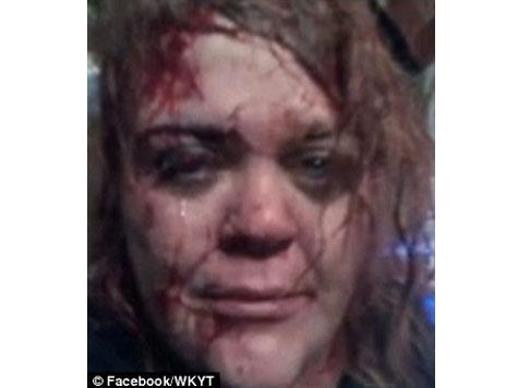 Badly Beaten Woman Posts 'Life Saving' Selfie on Facebook