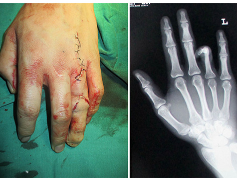 Surgeons Replace Man's Severed Finger With His Toe