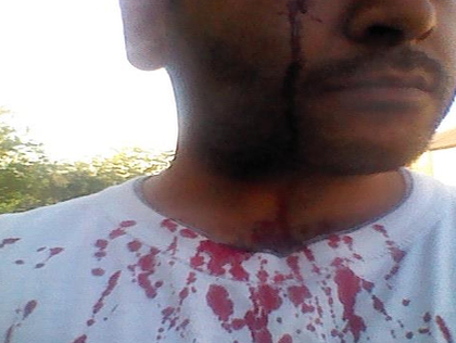 UKIP Candidate: I Was Stabbed in the Face by 'Labour Supporters'